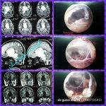 جراحی آندوسکوپیک مغز کودک 8ساله