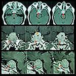 کاهش بینایی در تومور آدنوم هیپوفیز