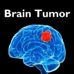 جراحی تومور بسیار بزرگ مننژیوم توسط دکتر گیو شریفی