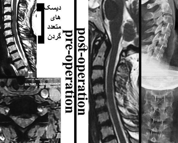 جراحی دیسک های متعدد گردن
