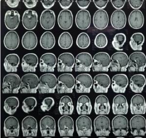 https://gsharifi.com/wp-content/uploads/2019/02/meningioma-1-300x284.png