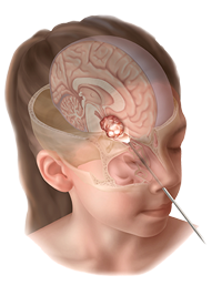 pediatric-endonasal-figure