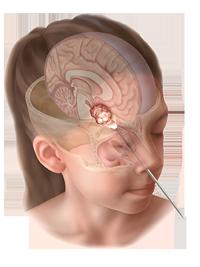 pediatric-endonasal-figure