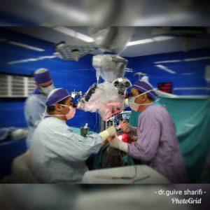 تومور بزرگ ناحیه کلینوئید و کاورنوس چپ