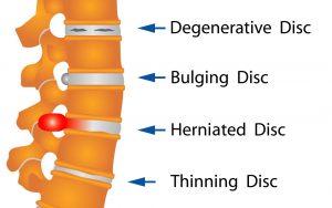 Lumbar disk disease
