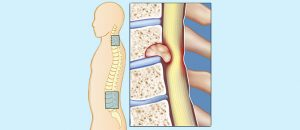 تومور داخل نخاعی گردن