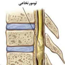 تومور نخاعی اپاندیموما