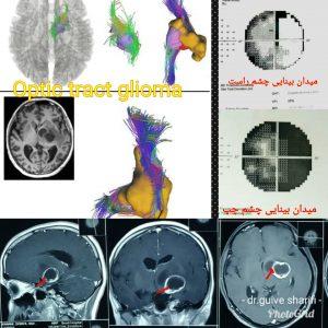 تومور گلیوم