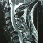 عمل جراحی مهره های گردن