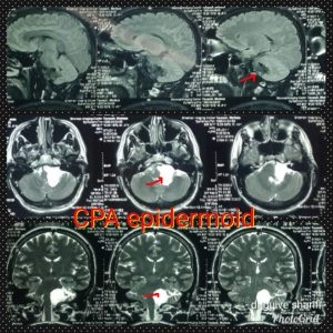 تومور اپیدرموئید Cpa