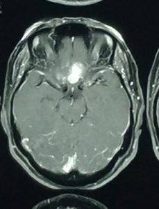 تومور مننژیوم مغز