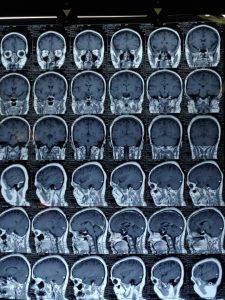 تومور کرانیوفارنژیوم