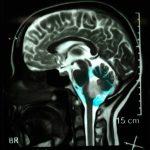 گلیوم ساقه مغز با علامت وزوز گوش