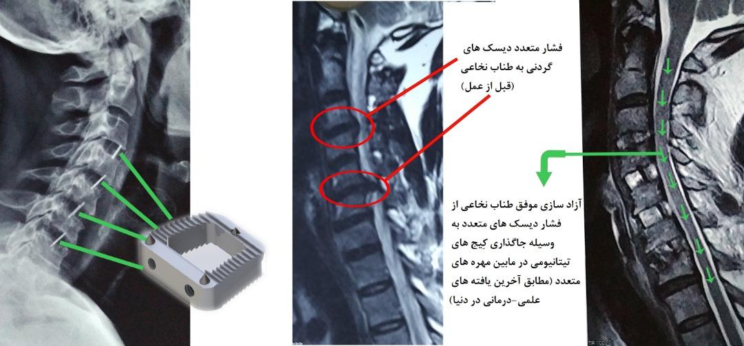 عمل دیسک های متعدد گردن بدون استفاده از پیچ و پلاک