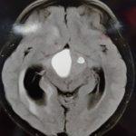 تومور بزرگ کرانیوفارنژیوما به همراه هیدروسفالی در کودک ۱۲ ساله