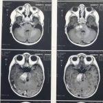 تومور ساقه مغز