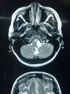 تومور شوانوم عصب دوازدهم با علامت فلج زبان