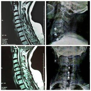 دیسک های متعدد گردنی