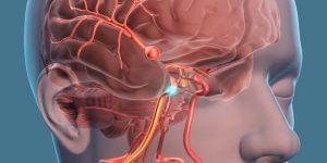 عمل آنوریسم مغزی