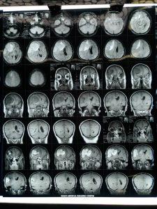 تومور بزرگ از جنس مننژیوم