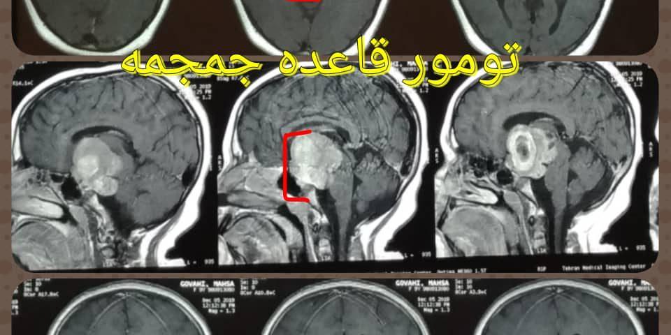 تومور ناحیه سوپراسلار