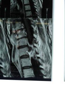 عمل جراحی دیسک گردن