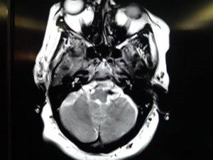 نورالژی عصب تریژمینال