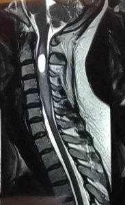 عمل جراحی تومور نخاع گردنی