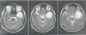 تومور گلیوم ناحیه اینسولا و تمپورال لوبکتومی