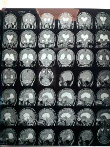 عمل آندوسکوپی و یا بسته مغز به دنبال هیدروسفالی