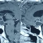 عمل تومور مغز از راه بینی و با آندوسکوپی