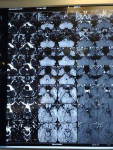 تومور مغز اپیدرموئید