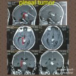 تومور مغزی در نوجوان ۱۱ ساله