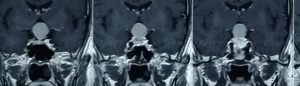 تومور استاک یا دسته هیپوفیز