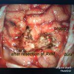 عمل جراحی کلافه عروقی شریانی وریدی