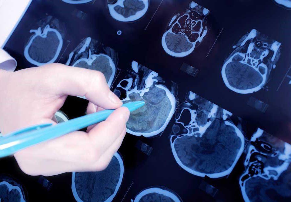 تفاوت جراح و متخصص مغز و اعصاب؟