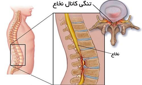 علائم تنگی کانال نخاعی