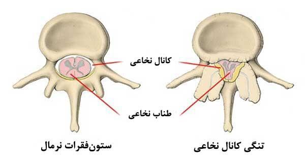 درمان گیاهی تنگی کانال نخاعی